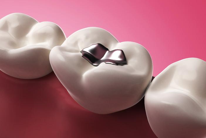DENTISTA-LOCARNO-PONCHIO-AMALGAME-servizi-per-adulti - amalgama - dentale