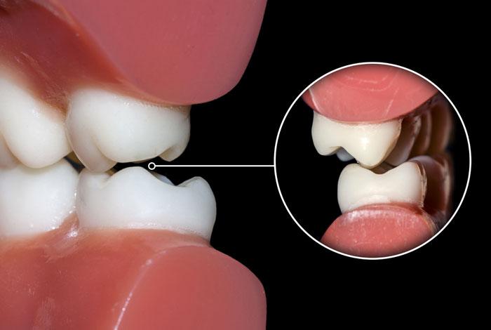 Dentista-Locarno-Studio-Ponchio-Malo-occlusioni